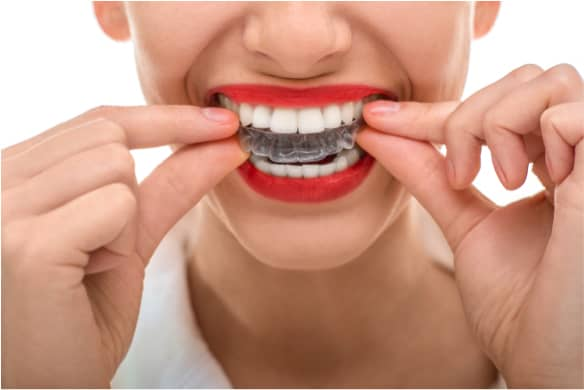 What To Expect During The First Week of Invisalign Treatment