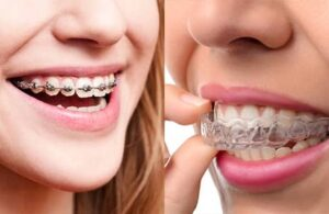 Metal Braces vs. Invisalign