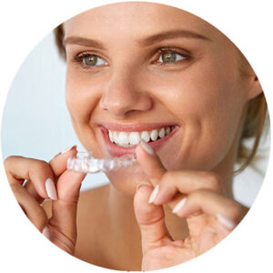 The Invisalign Process — Step-by-Step